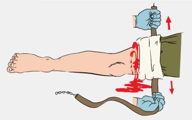 Накладывайте жгут через одежду или мягкую подкладку выше раны или как можно ближе к ней, выше колена или логтя