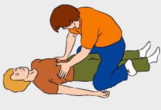 Если человек без сознания, сядьте ему на бедра и обеими руками надавите на реберные дуги