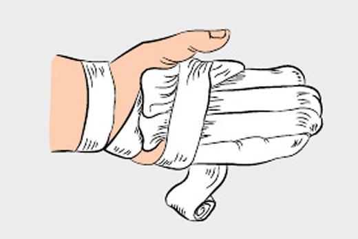 Укутайте обмороженный участок тела