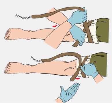 Подведите жгут под конечность и растяните, затяните первый виток жгута и убедитесь, что кровотечение прекратилось