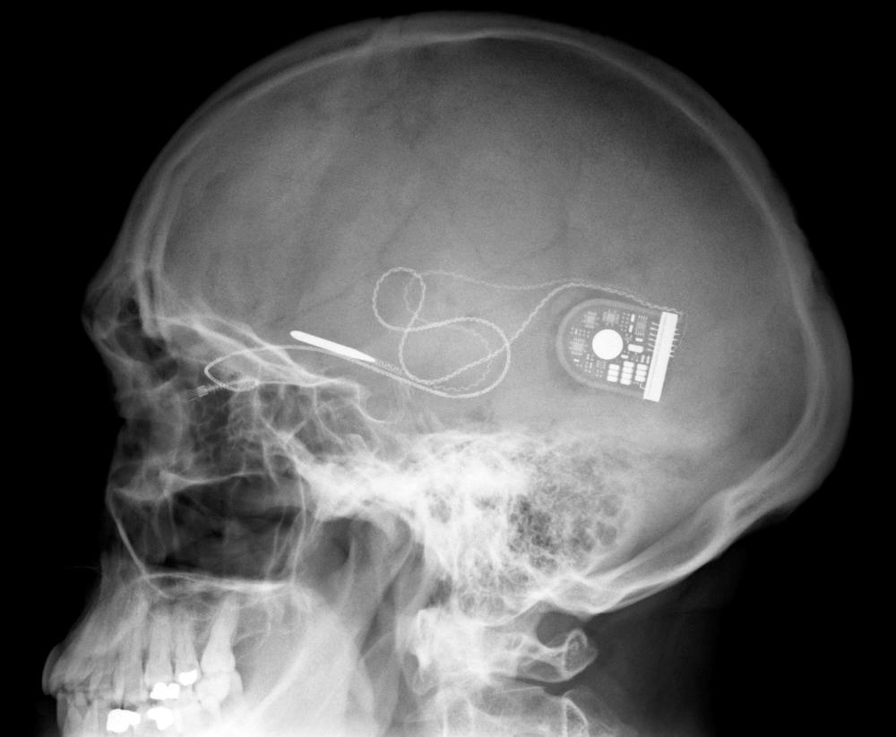 Бионические имплантаты глаз частично возвращают зрение