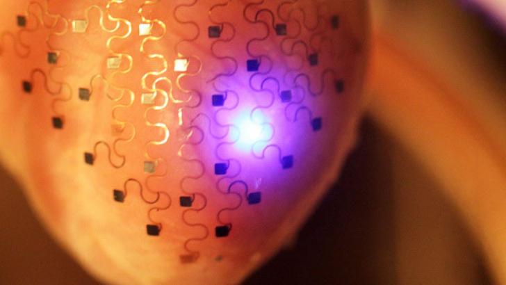 3D-имплантат ранней диагностики сердечных заболеваний