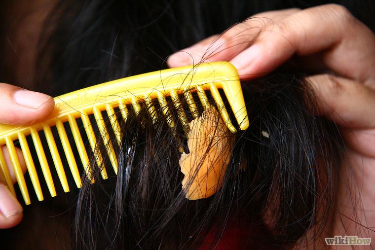удаление волос вокруг анальности