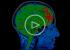 ВИДЕО: Как своим мозгом контролировать чью-то руку, или Чудеса нейробиологии