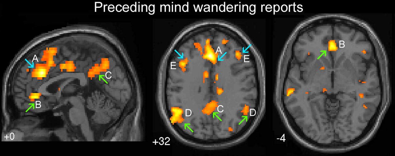 Зелёными стрелками показаны области мозга, ответственные за «автоматическое поведение». Синими стрелками - «исполнительную» часть мозга. А - дорсальная часть поясной извилины, B - вентральаня часть поясной извилины, С - предклинье полушарий головного мозга, D - двусторонний височно-теменной узел, E - дорсолатеральная префронтальная кора