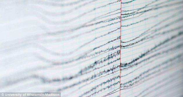 Диаграмма, снятая во время ЭЭГ головного мозга Матье Рикара