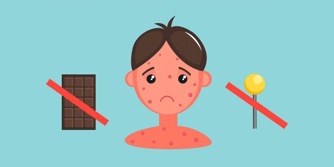 4 мифа о пищевой аллергии, которые почему-то ещё живы