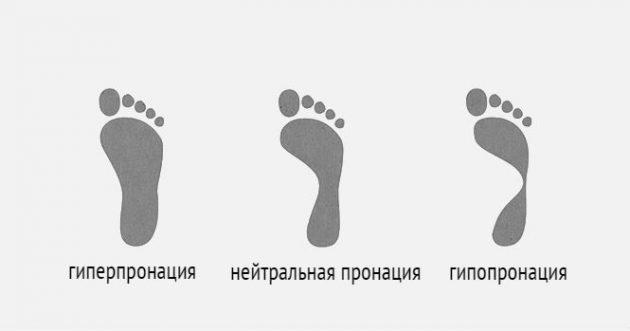 Как выбрать спортивную обувь: степень пронации