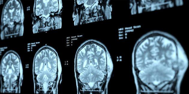 Как технологии помогут поддерживать здоровье мозга в цифровую эпоху