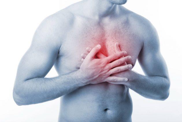 мифы о здоровье: сердечный приступ