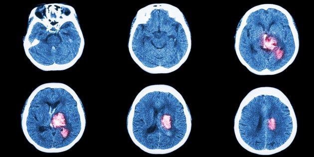 6 признаков инсульта, при которых нужно действовать как можно быстрее