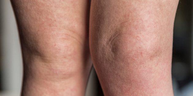 Симптомы скарлатины: сыпь