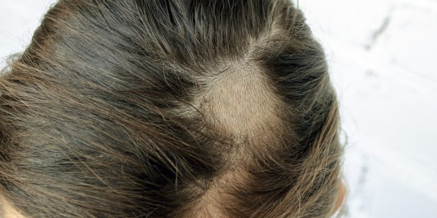 Грибок кожи: стригущий лишай