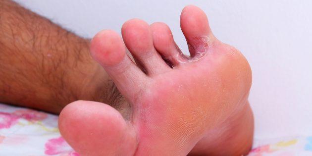 Грибок стопы: нога спортсмена