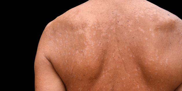 Грибок кожи: разноцветный (отрубевидный) лишай