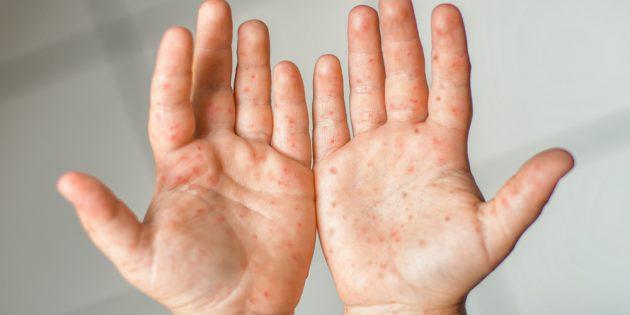 Симптомы вируса Коксаки: сыпь