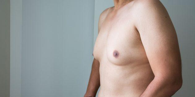 Мужчина с гинекомастией